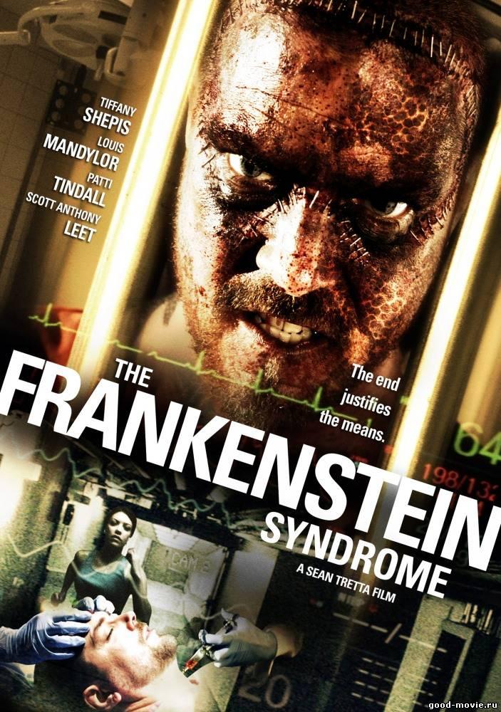 Постер Синдром Франкенштейна